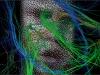 Su Brain Tracts-Video Still
